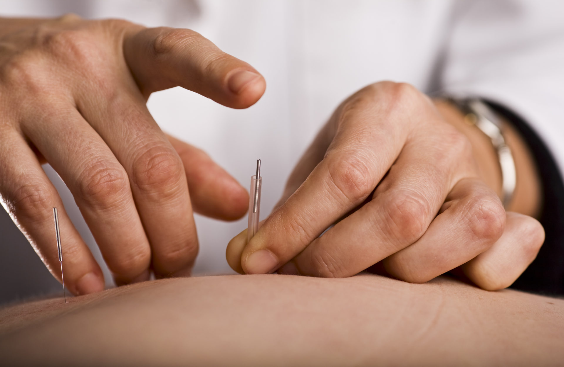 Acupuncture and Dry Needling – What's the difference?
